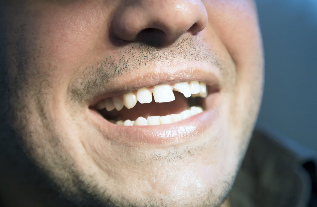 person with missing teeth